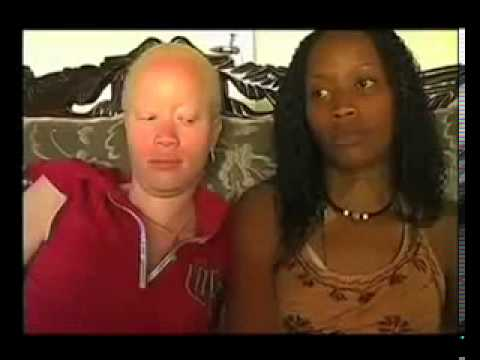 "Oscar winner Lupita Nyong'o ""In My Genes"" Documentary on Albinism Trailer"